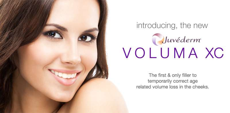Juvederm voluma woman